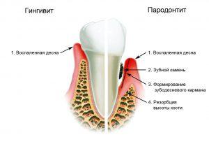 gingivit2